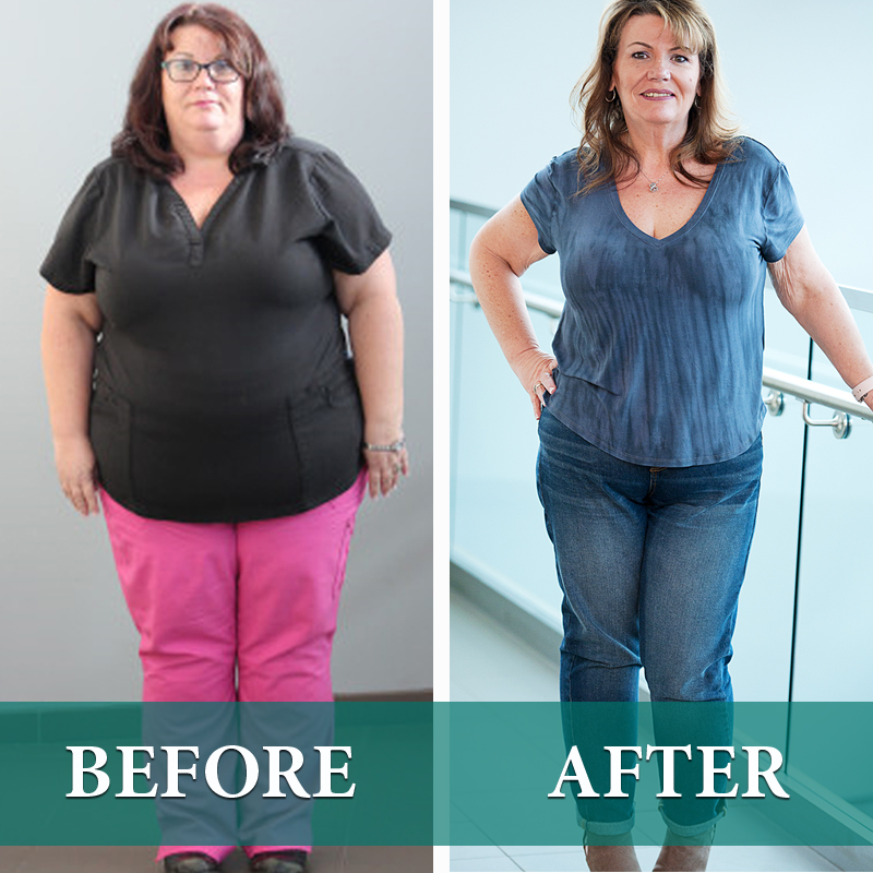 Before And After Photos Centra Health Central Virginia S